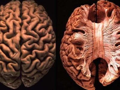 Five Ways In Which Postmortem Brain >> Postmortem Brain Natalie Matosin