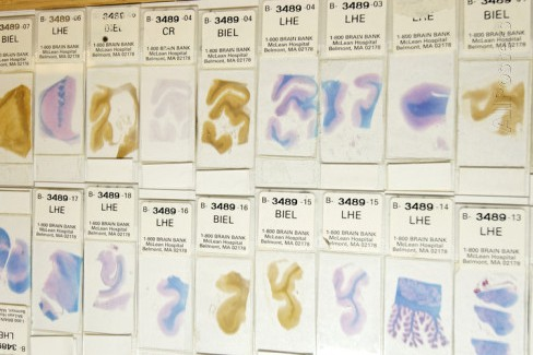 Human brain microscope slides. Microscope slides of stained sections of human brain. These slides are from the Harvard Brain and Tissue Resource Centre, USA. This is the largest brain bank in the world. It stores over 3,000 brains, which are available to researchers studying disorders such as Alzheimer's disease, Parkinson's disease and schizophrenia.